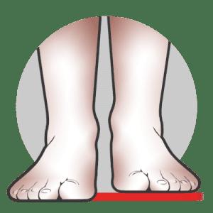 Alaraajojen pituusero