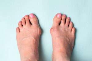 Vaivaisenluun vaivaamat jalat